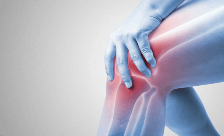 Joint Relief 911 Review - Eliminate Severe Joint Pain At ANY Age?