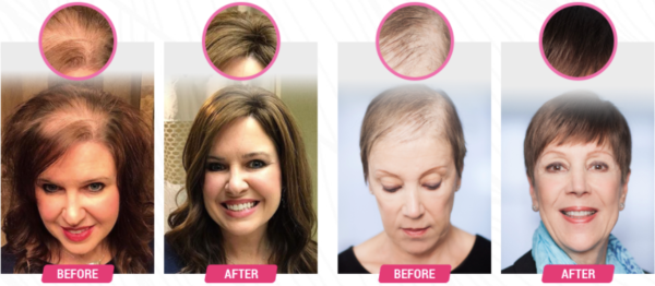 HairFortin Ingredients clinically tested