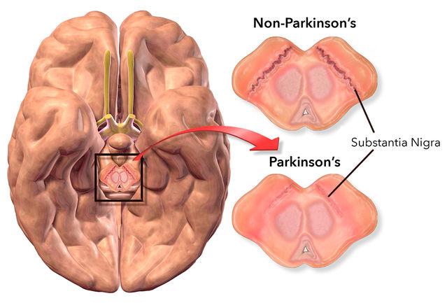 Parkinsons Protocol reviews