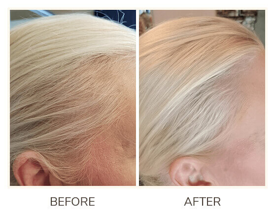 Folliboost Hair Growth Serum Before and After