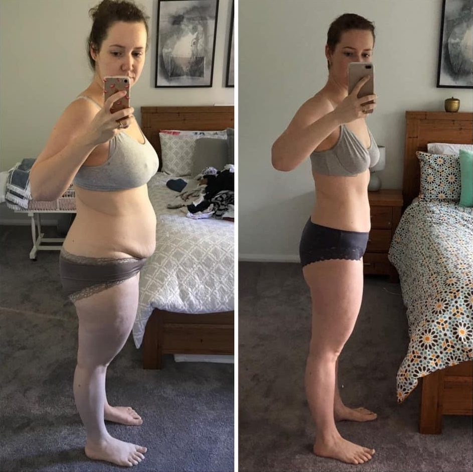 Autaphagene Before and After