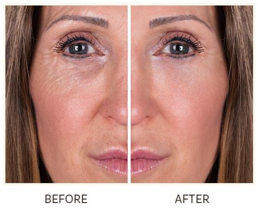 Advanced Skincare Lift Factor Plus Before and After